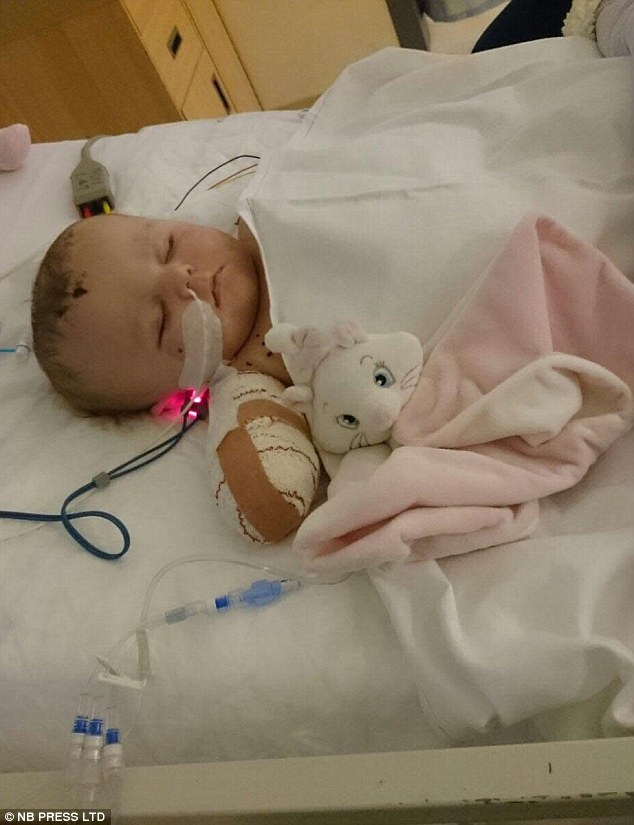 Doctors warn the youngster may also lose her sight and hearing, and suffer brain damage