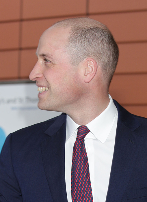 The Duke of Cambridge surprised with a new hairstyle as he arrived for a visit to the Evelina London Children's Hospital in London Photo (C) PA