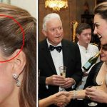 Kate Middleton has a scar on the side of her head which has remained hidden for years (Image GettyImages