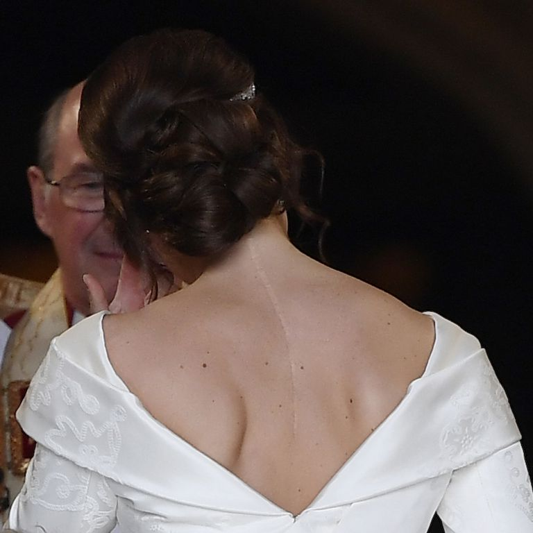 Eugenie's scar is visible in her wedding dress Photo C Getty ImagesTOBY MELVILLE