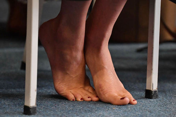 Meghan Markle feet A small scar was visible on Meghans left foot Image Getty