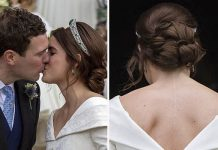 Princess Eugenie says her large scar is a point of pride ImageGetty