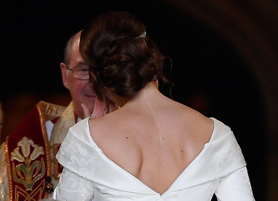 princess-eugenie-scar-on-back