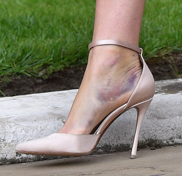 Princess Beatrices painful injury you may have missed at Lady Gabriella Windsors royal wedding Photo C GETTY IMGES