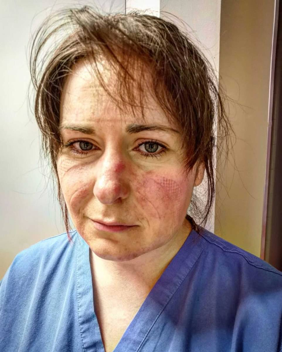 Kate added of an image of a nurse marked by a PPE mask: 'It's a really harrowing image, they're the things that not everyone at home will witness so it's important to see what those on the front line are experiencing'. ICU nurse Aimee Goold posted a heartbreaking image of her tired and scared face, pleading with people to stay home